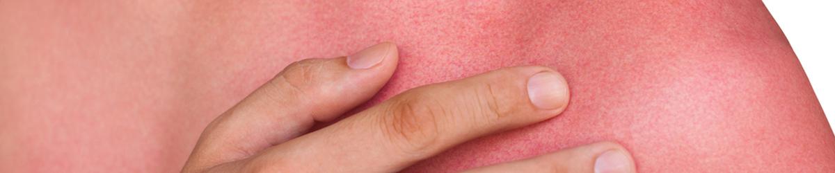 Brûlure et cloque, phlyctène : adoptez les bons gestes pour éviter la surinfection